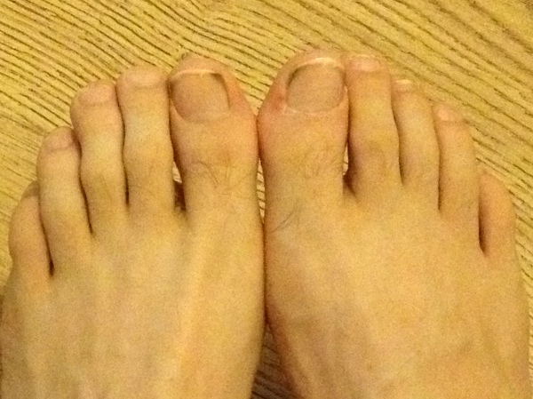 My pre-marathon feet - not beautiful, but no blackened nails